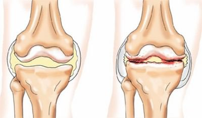 Lábfájdalmak: tünetek, diagnózis, kezelés - Masszázs