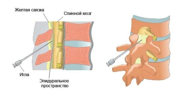 hogy a kenőcsök behatolnak az ízületbe térdbetegséget okoz