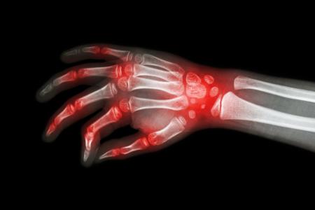 hüvelykujj ízületi fájdalom