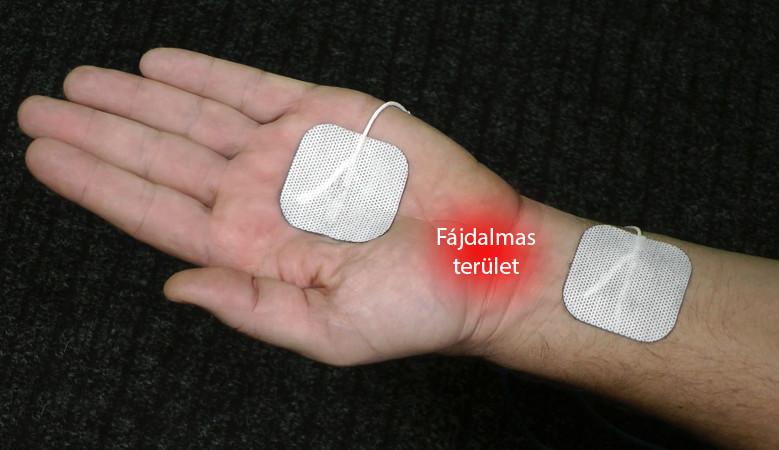 kéz fájdalom
