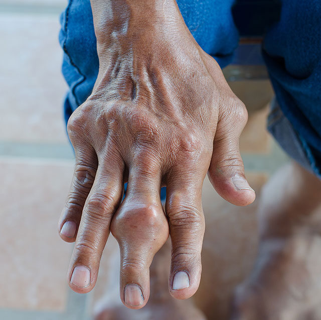 köszvényes láb tünetei ízületek repedés és fájás