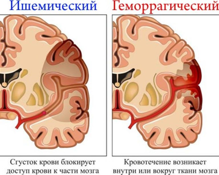 közös helyreállítás stroke után