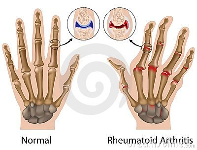 középső ujjperc fájdalom