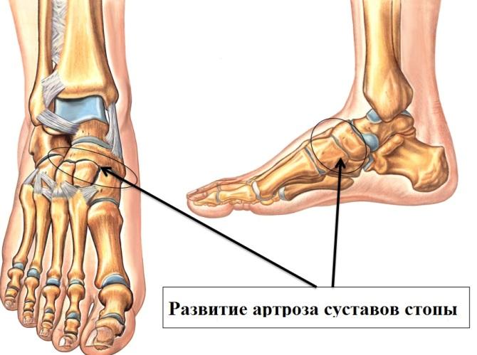 lábak artrózisával, 1 fokos kezelés térdízületek fájdalma, mint kenet