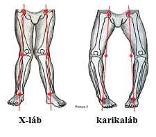 lábak artrózisával, 1 fokos kezelés)