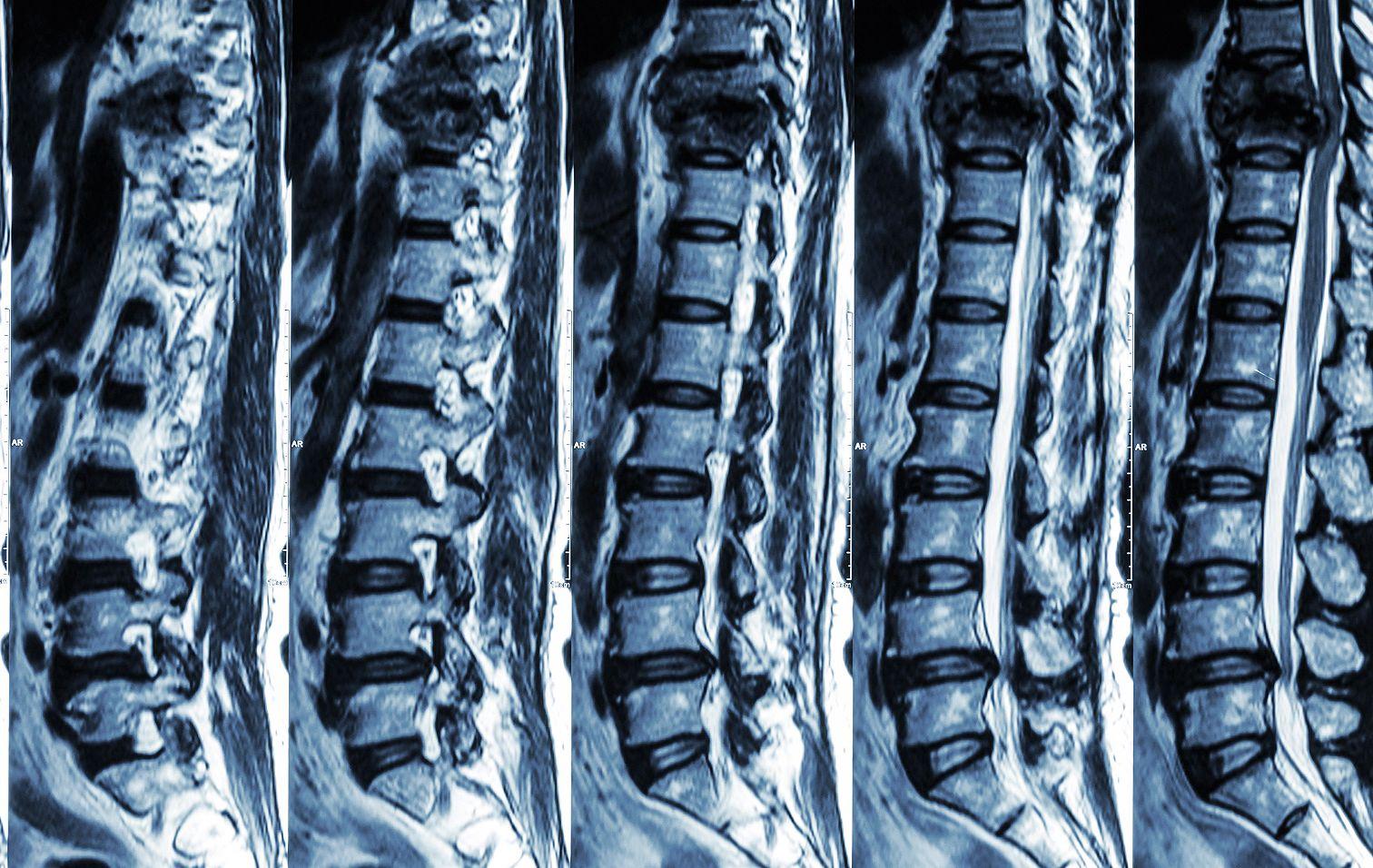 lumbális gerinc mr vizsgálat menete