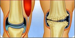 mi az artrózis kezelés