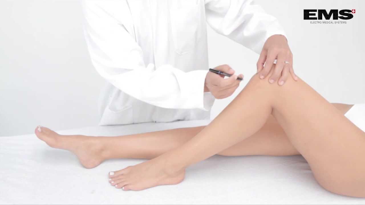 mi okozza a gyulladást a térdízület ligamentumaiban ízületi gyulladásos gélek