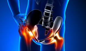 miért fájnak a csípőízületek