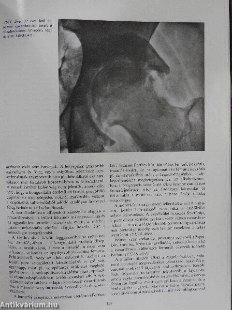 nodularis ízületi betegség)