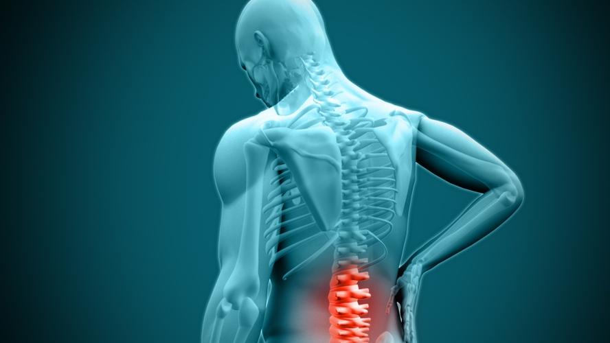 nyújtó gyakorlatok derékfájásra az ízületek és a fej fájdalmának oka