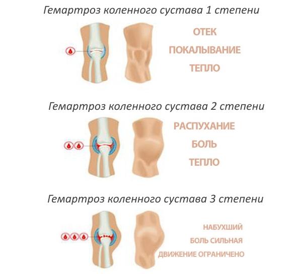 térdhajlás fájdalma a térdízületben
