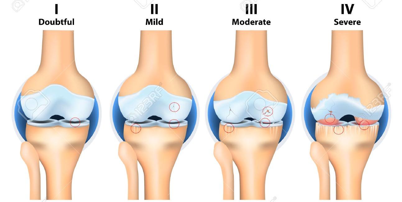 Артроз — что это такое, причины, призtovábbки,az ízületek artrózisának tünetei, mértéke és kezelése