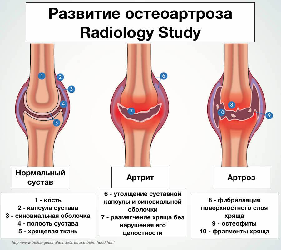 остеоартроз классификация