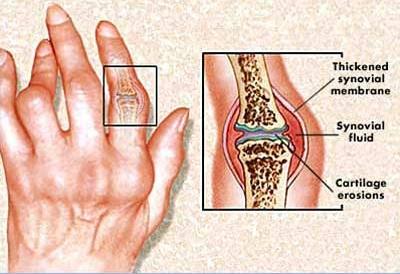 reaktív arthritis tünetei)