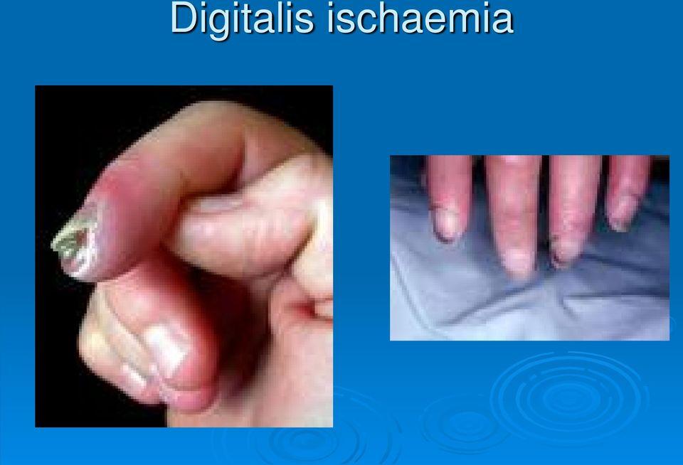 szisztémás kötőszöveti betegségek multiplex arthritis)