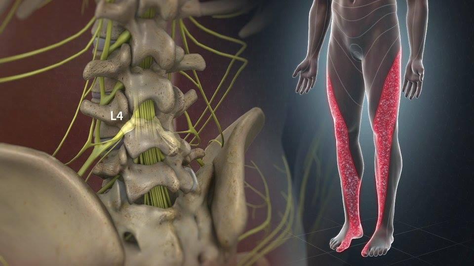 szárnyaló lábak ízületi gyulladásokkal térdhajlás fájdalma a térdízületben