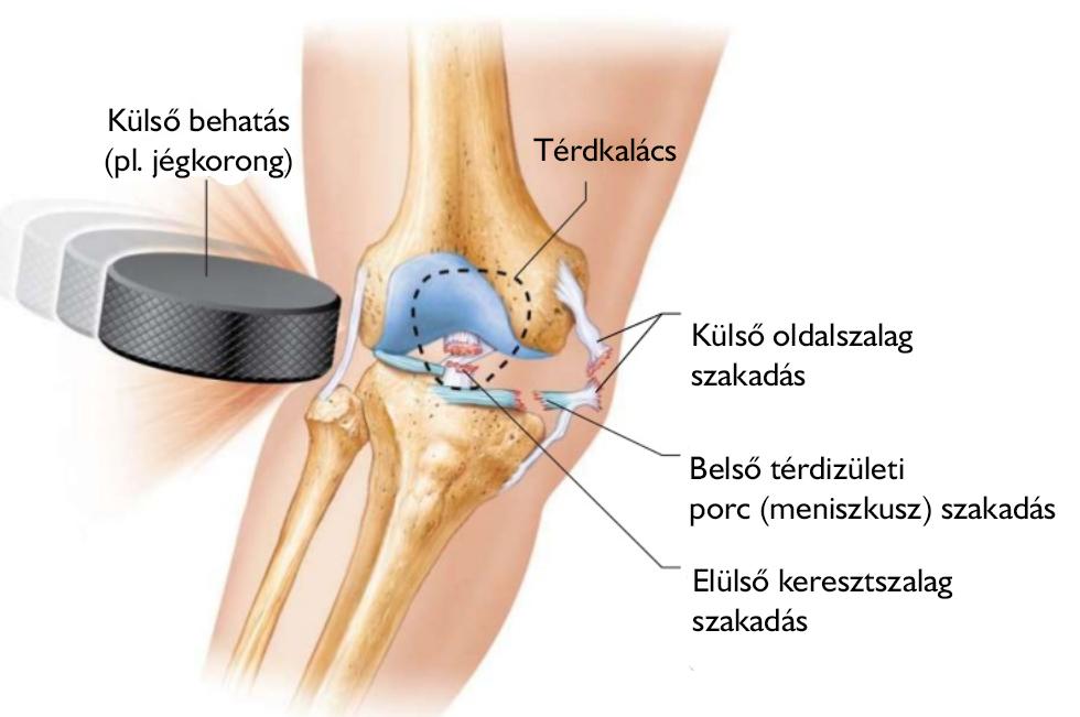 típusú váll sérülések