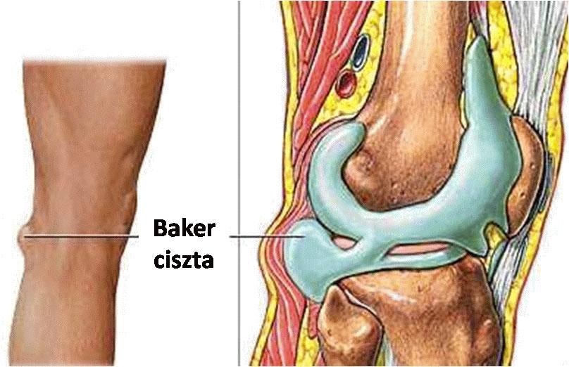 Baker-ciszta: porckopás, térdfájdalom és duzzanat jelzi