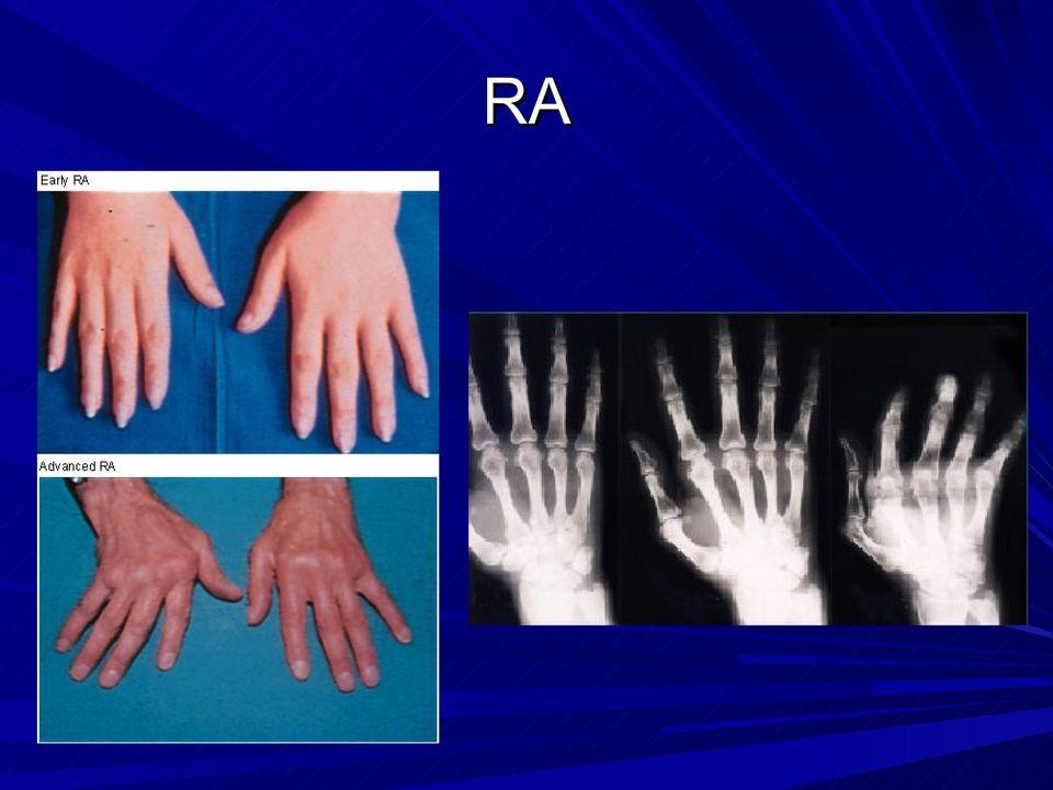 térd exudatív artritisz ízületi gyulladás a nagy lábujj kezelésénél
