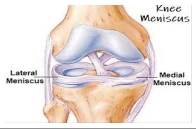 térd meniszkusz sérülések kezelése