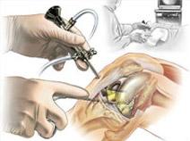 térd műtét