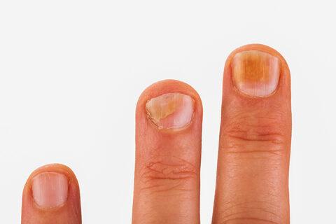chondromalacia a térd hogyan kell kezelni alkalmazások artrózis kezelésére