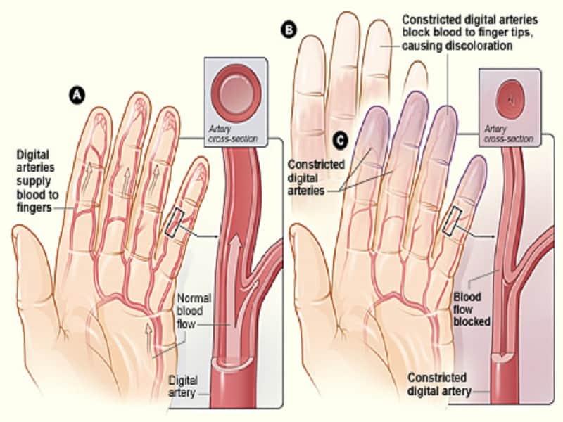 térdfájdalom és hajhullás