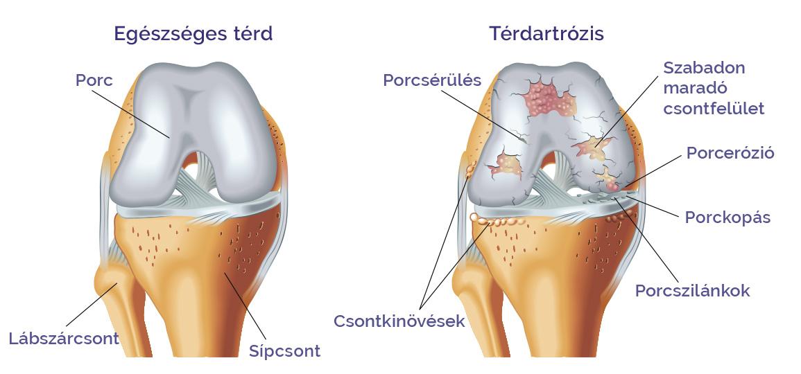 ízület alakú kezelése a térd ízületi gyulladásának kezelése földigilisztákkal