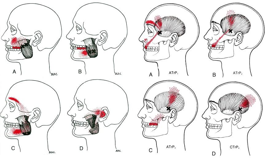 ízületi fájdalmak és fejfájás