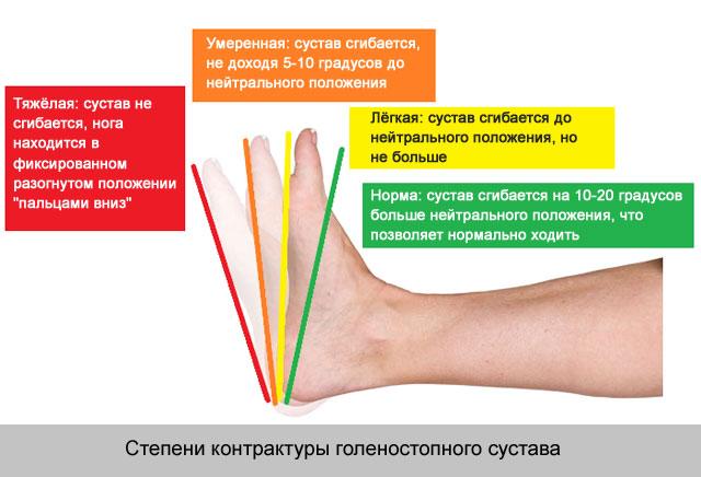 ízületek traumás sérüléseivel)