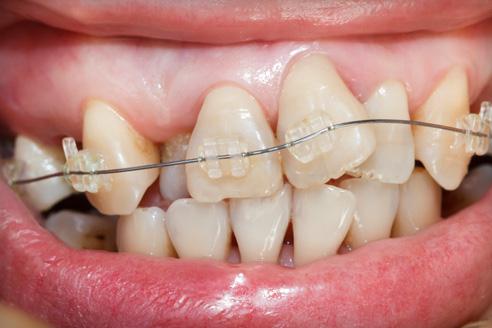 ízületi fájdalom a száj megnyitásakor jobb oldali hátfájás lelki okai