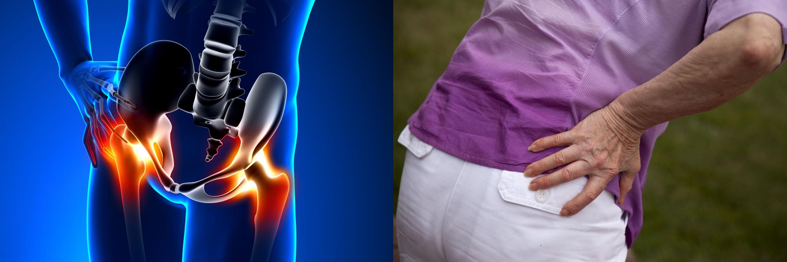ízületi fájdalom csípő okoz