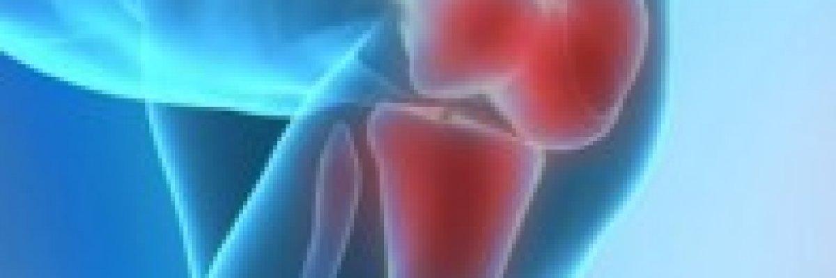 ízületi fájdalom limfómával