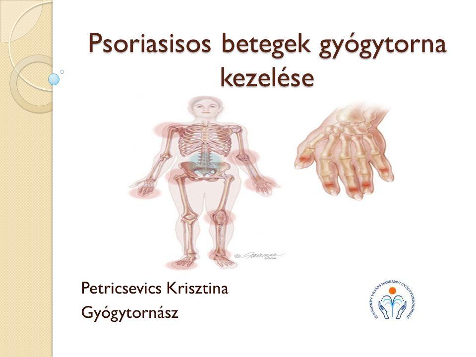 ízületi gyulladás balneológiai kezelése)