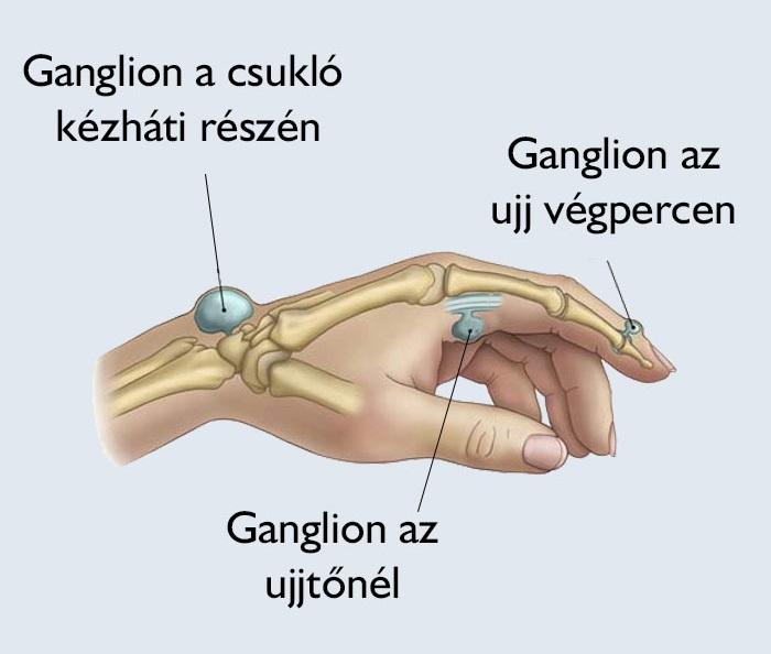 ízületi és gerinc előkészítés)