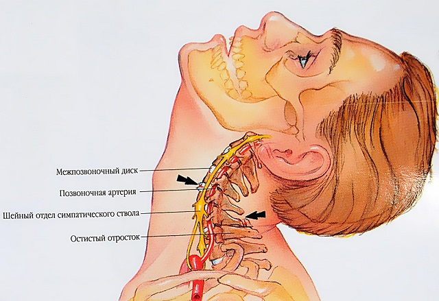 osteoarthritis kezelő fórumok