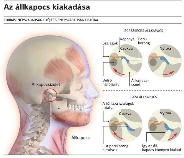 fájdalom az endoprotetizálás után tb ízület)