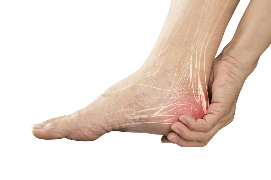 a lábak kötőszövetének gyulladása