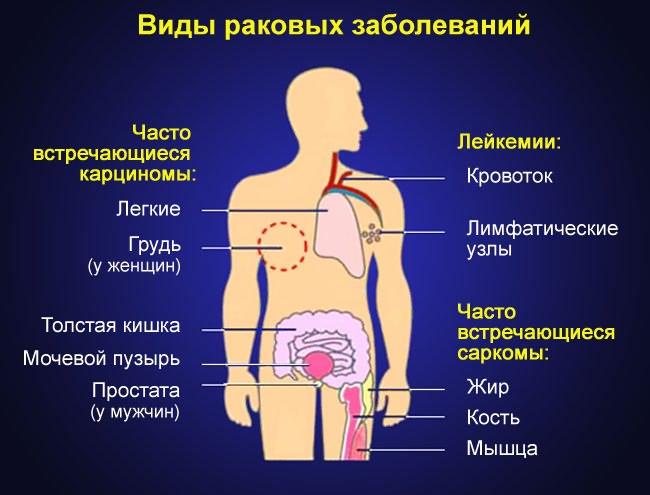 gyógyszer térd ízületi gyulladás