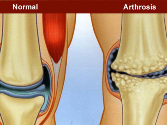 fájdalom a jobb láb térd alatt