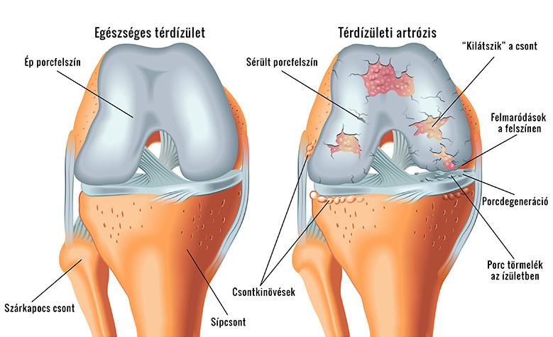 kombilipen térd artrózisával