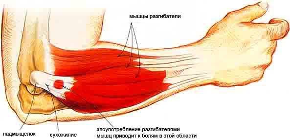 éles fájdalom a metatarsális phalangeális ízületben)