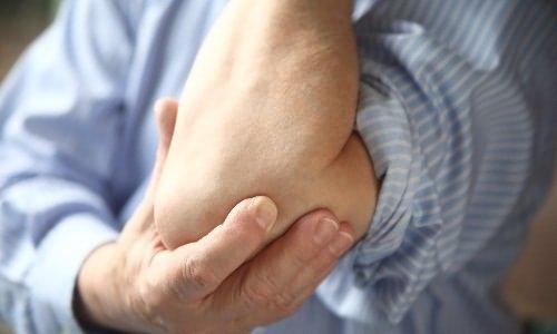 térd ízületi gyulladás és járás csípőfájdalom az ízületekben