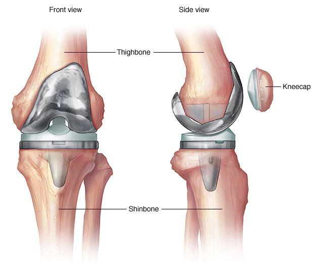 műtét térd artrózisának kezelésére