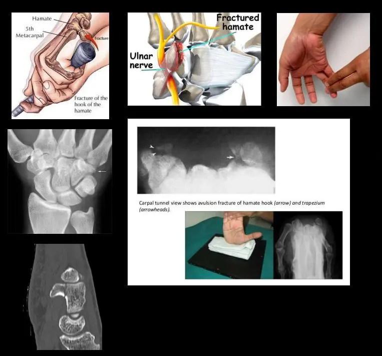 sérült hüvelykujj-kezelési show