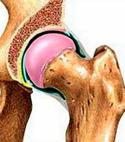 deformáló csípő artrózisa mi ez