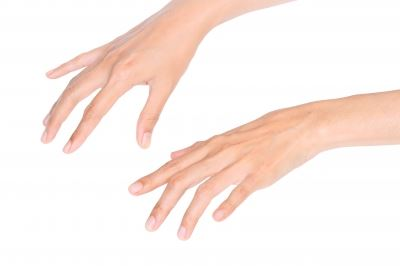 szisztémás fertőző allergiás kötőszöveti betegség)