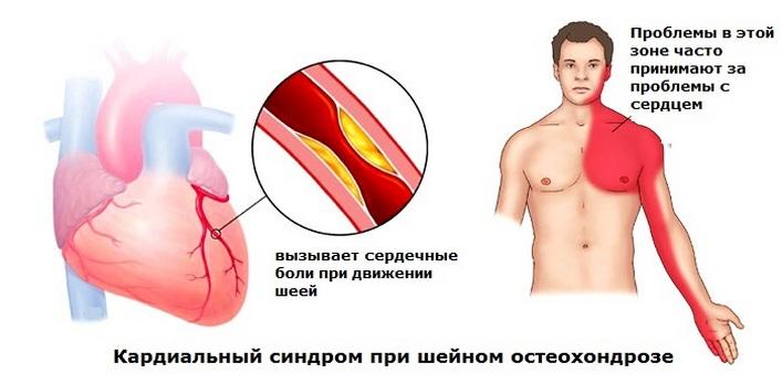 gyógyszerek a 2 fokú nyaki osteochondrozishoz