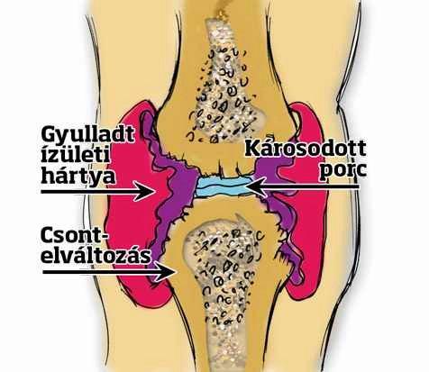 a térd artrózisa 2 szakasz